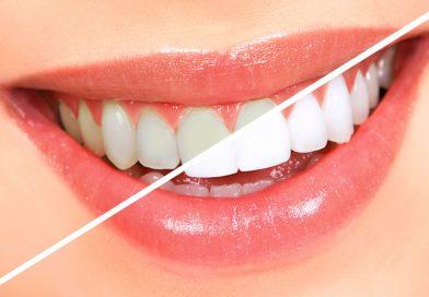 Sunt eficiente benzile de albire dentara?