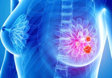 Ce este o biopsie a sanului?