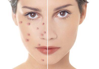 Cum pot scapa de acnee in mod natural?