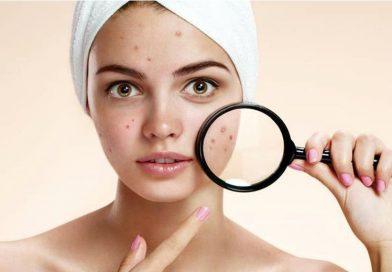 Cele mai bune remedii pentru acnee