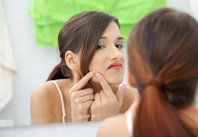 Cum se trateaza acneea in mod natural?