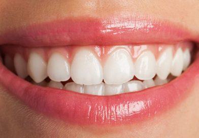 cum-sa-mi-albesc-dintii-acasa